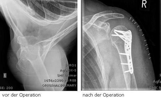 Behandlung einer Oberarmkopffraktur