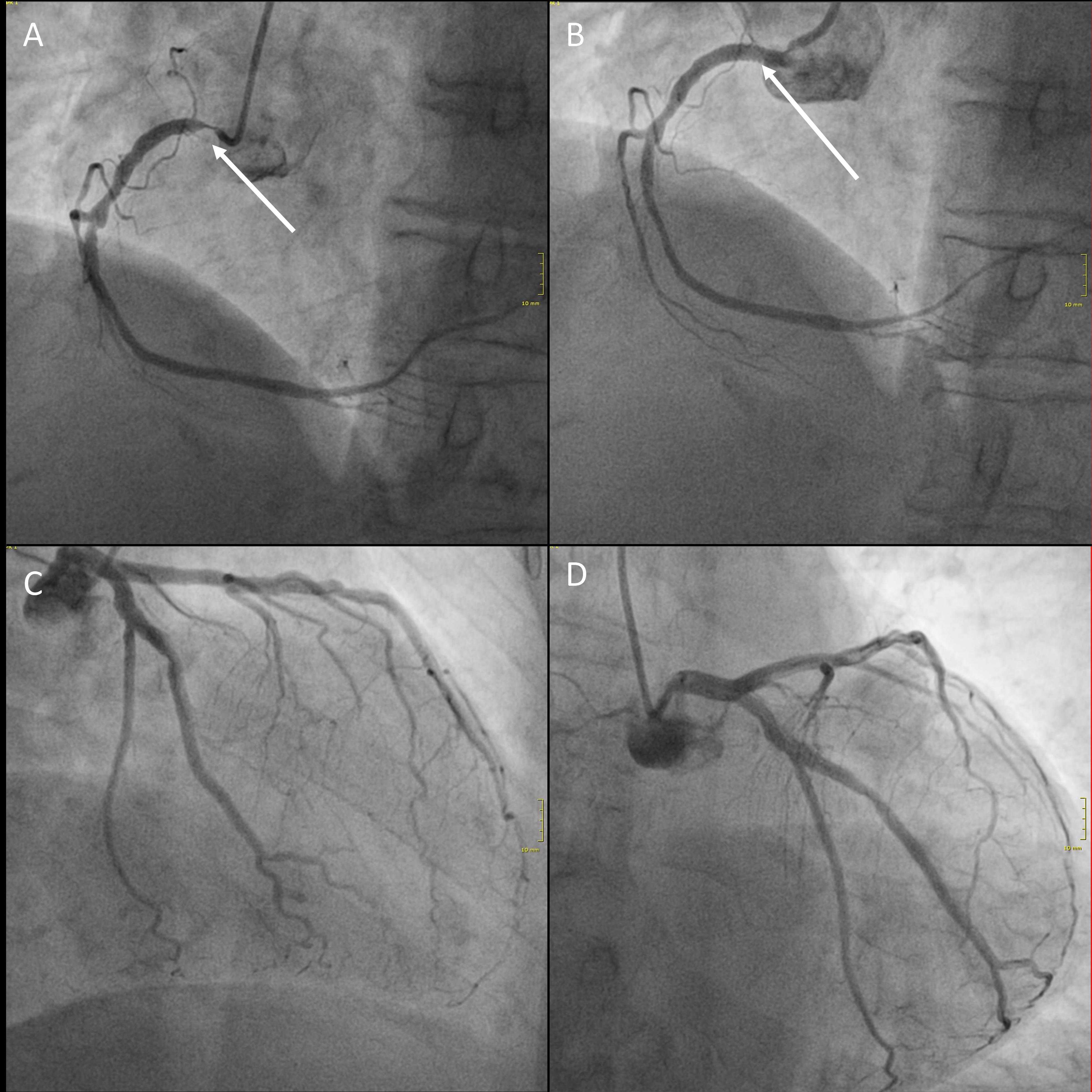 Darstellung der Herzkranzgefäße während einer Herzkatheteruntersuchung im Klinikum Weimar